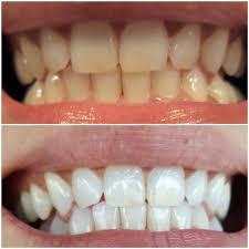 LASER TEETH WHITENING BEFORE & AFTER... - High Dent Center | Facebook